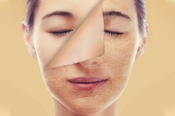 Phương pháp chăm sóc da để không bị khô nẻ khi mùa đông tới tại nhà